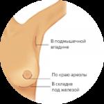 Маммопластика: гарантия безопасного проведения операции